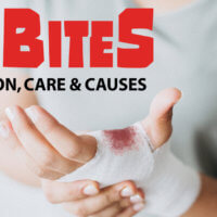 When a Pet Bites: Prevention, Care & Causes